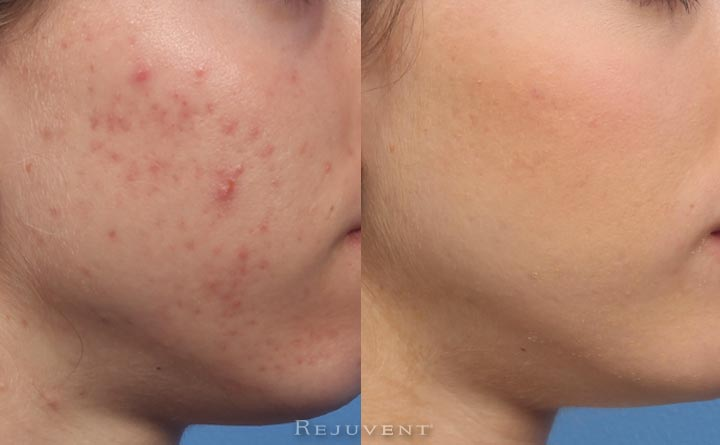 Break Free And Get Rid of Pimples Completely